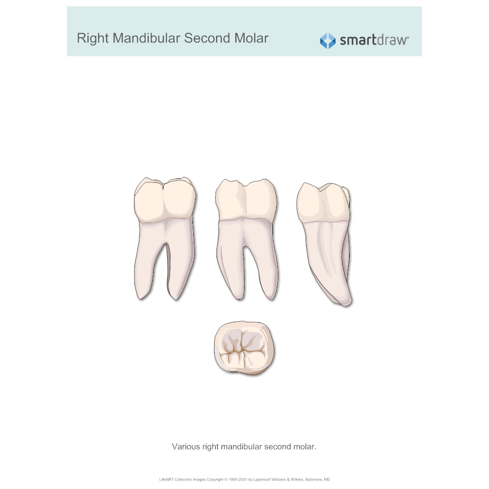 Example Image: Right Mandibular Second Molar