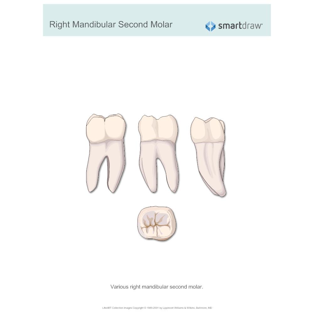 Example Image: Right Mandibular Second Molar