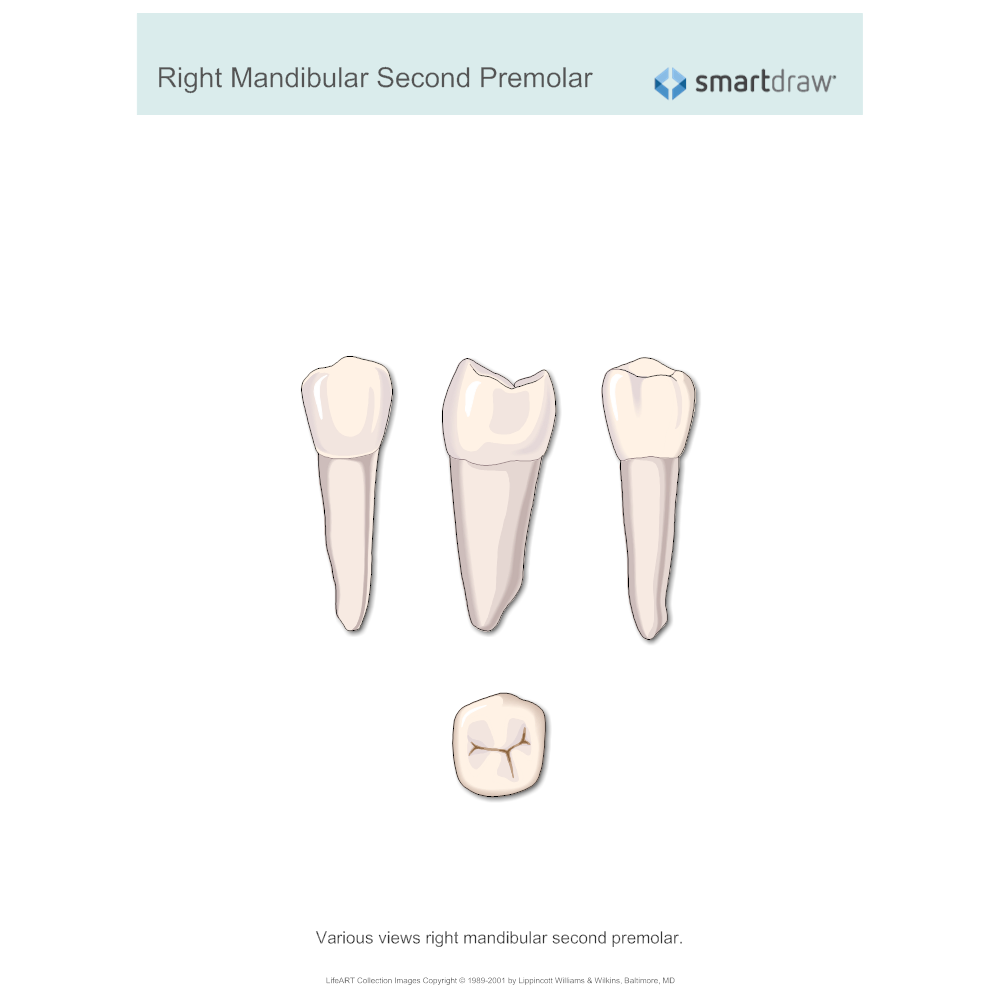 Example Image: Right Mandibular Second Premolar