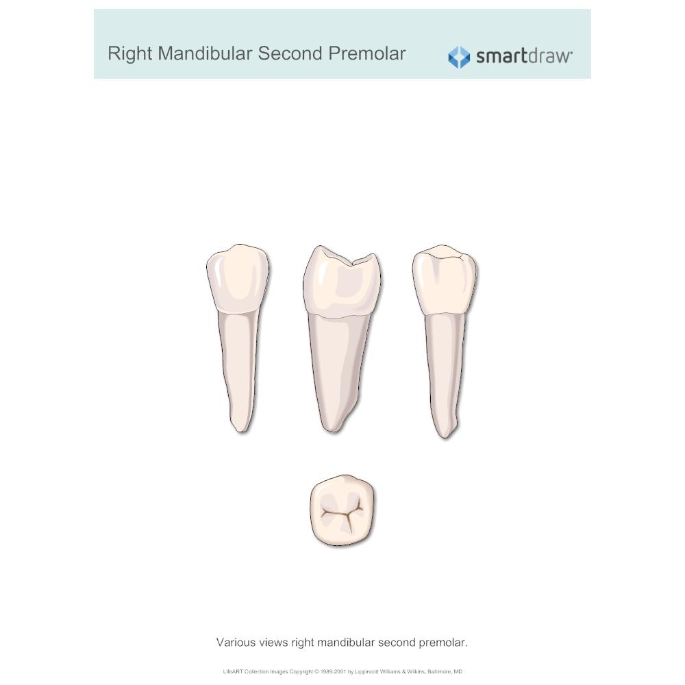 Example Image: Right Mandibular Second Premolar