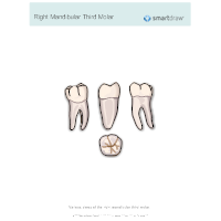 Right Mandibular Third Molar
