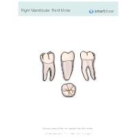 Right Mandibular Third Molar