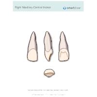 Right Maxillary Central Incisor
