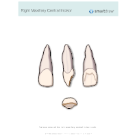 Right Maxillary Central Incisor