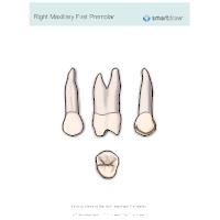 Right Maxillary First Premolar