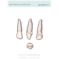 Right Maxillary Lateral Incisor