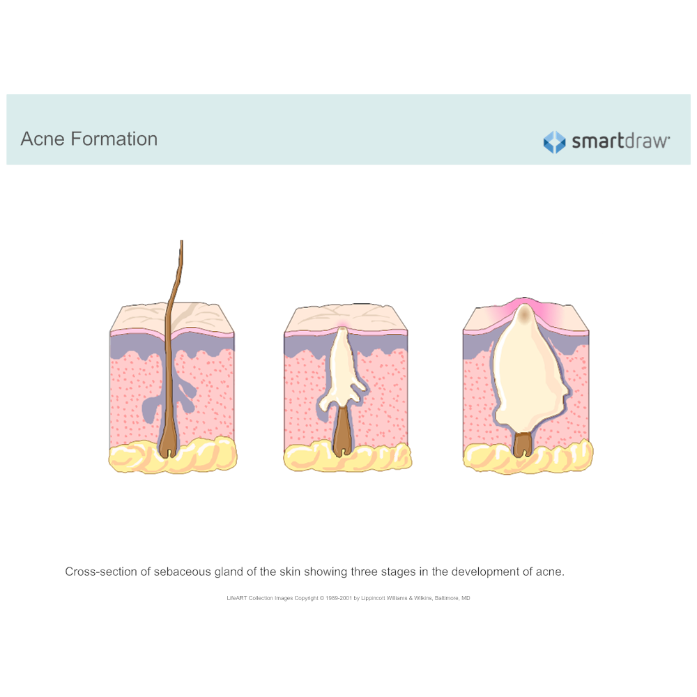 Example Image: Acne Formation