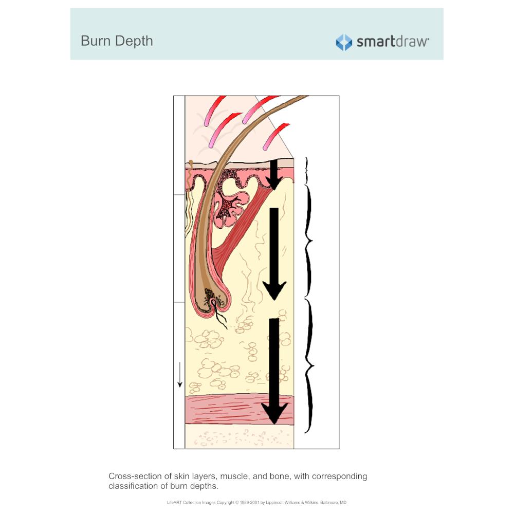Example Image: Burn Depth