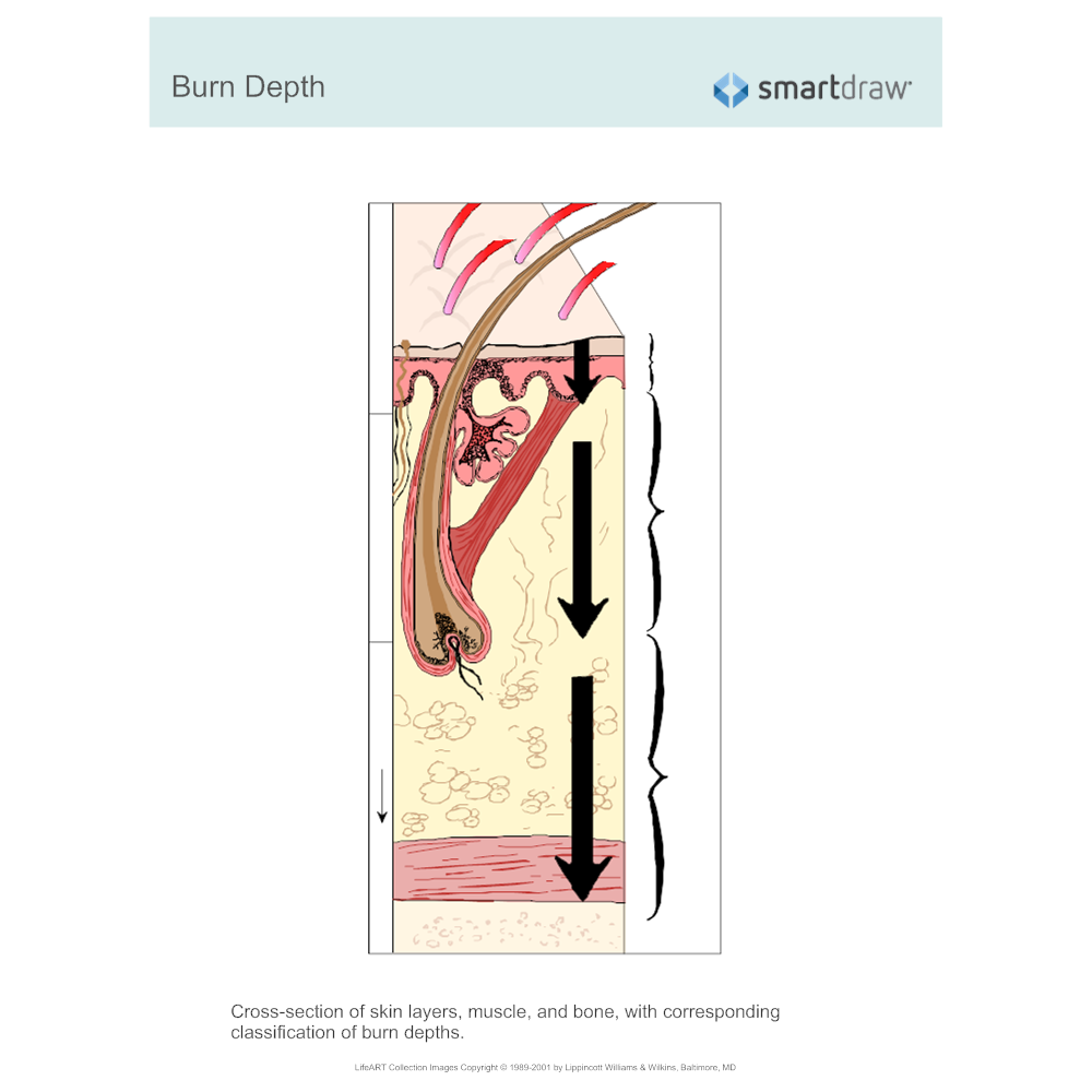 Example Image: Burn Depth