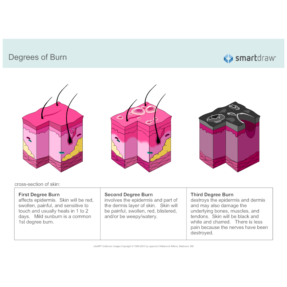 Example Image: Degrees of Burn