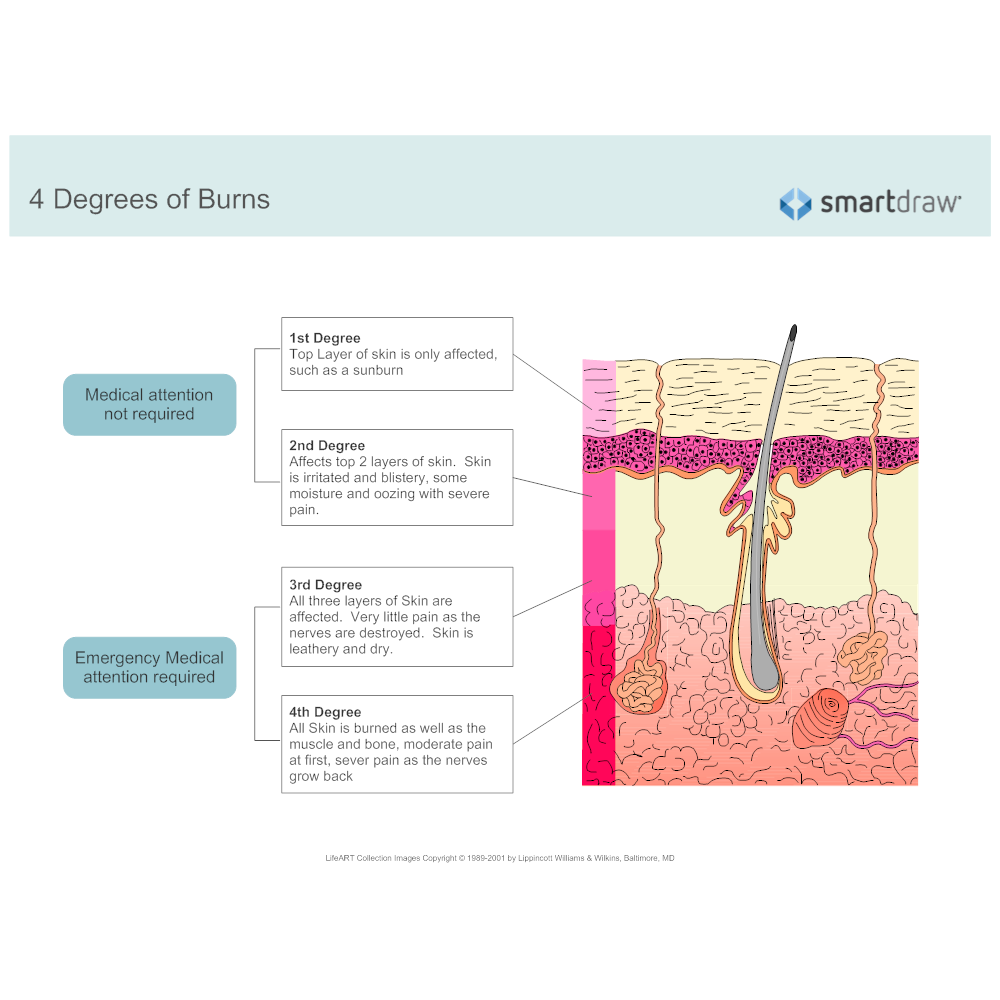 Example Image: Degrees of Burns