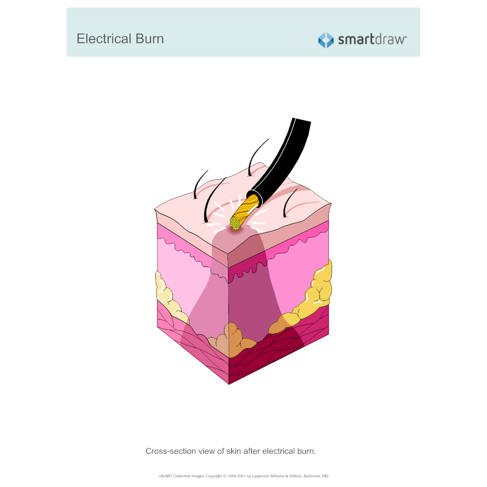 Example Image: Electrical Burn