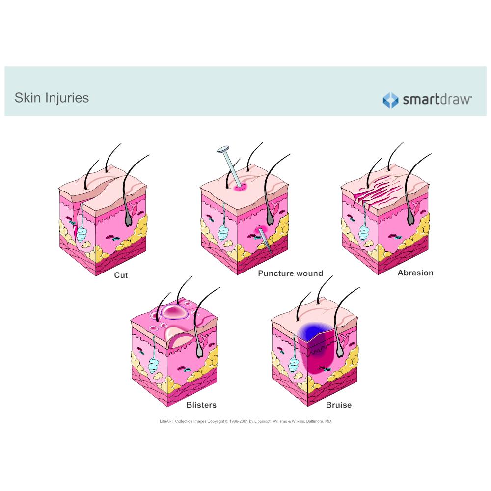 Example Image: Skin Injuries