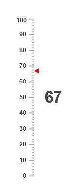 Linear vertical gauge