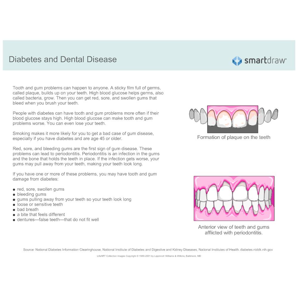 Example Image: Diabetes and Dental Disease