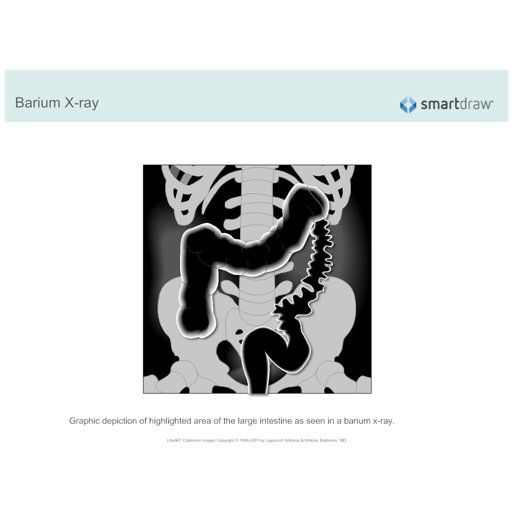 Example Image: Barium X-ray