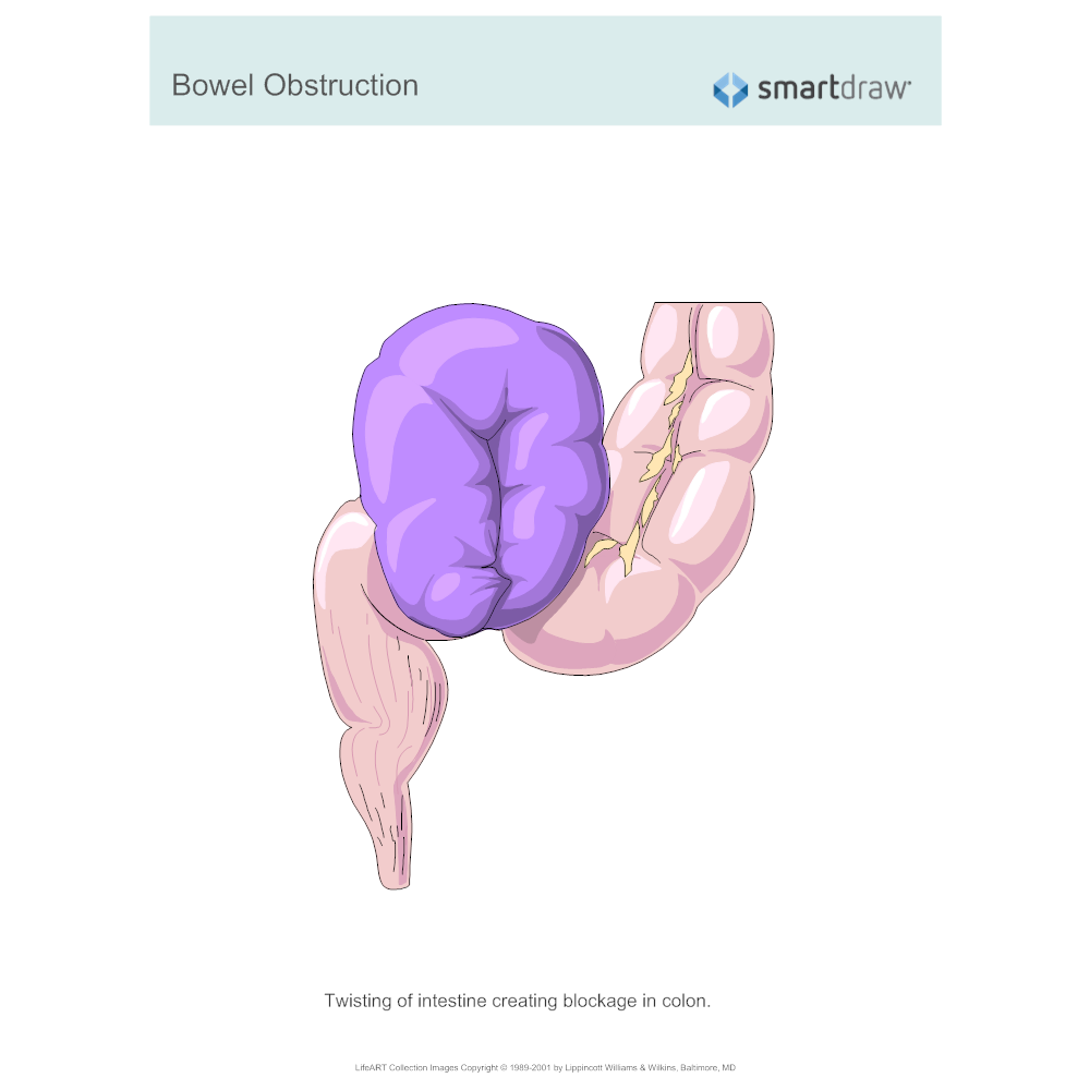 Example Image: Bowel Obstruction