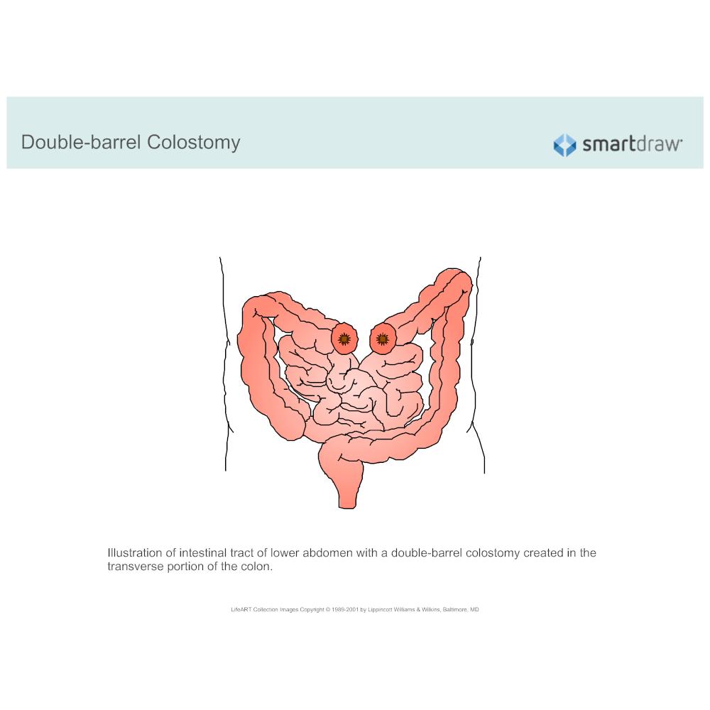 Example Image: Colostomy - Double-barrel