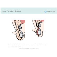 Hernia Formation - Inguinal