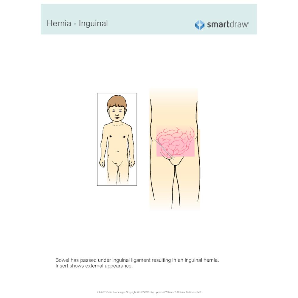 Example Image: Hernia - Inguinal