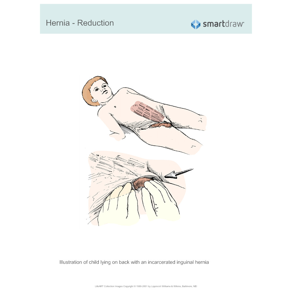 Example Image: Hernia - Reduction