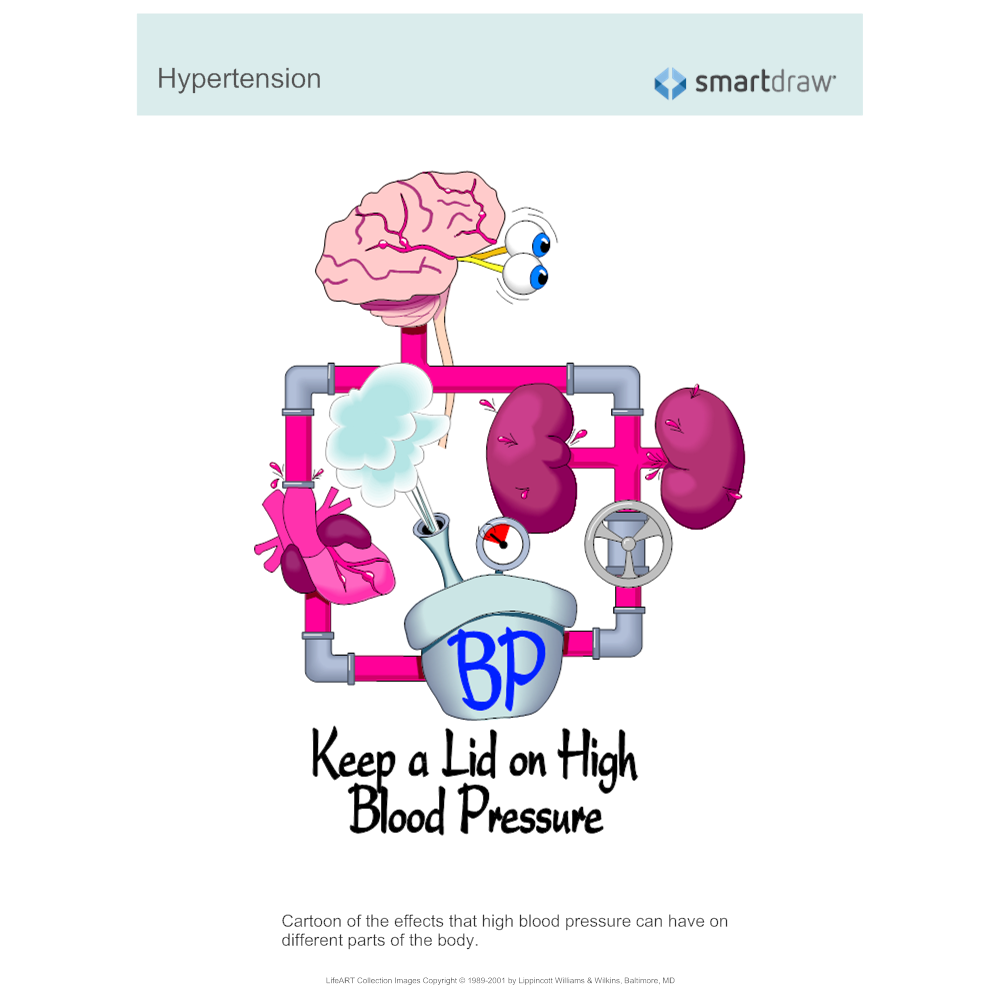Example Image: Hypertension