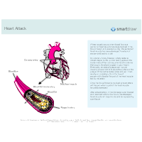 Disorders of the Coronary Circulation