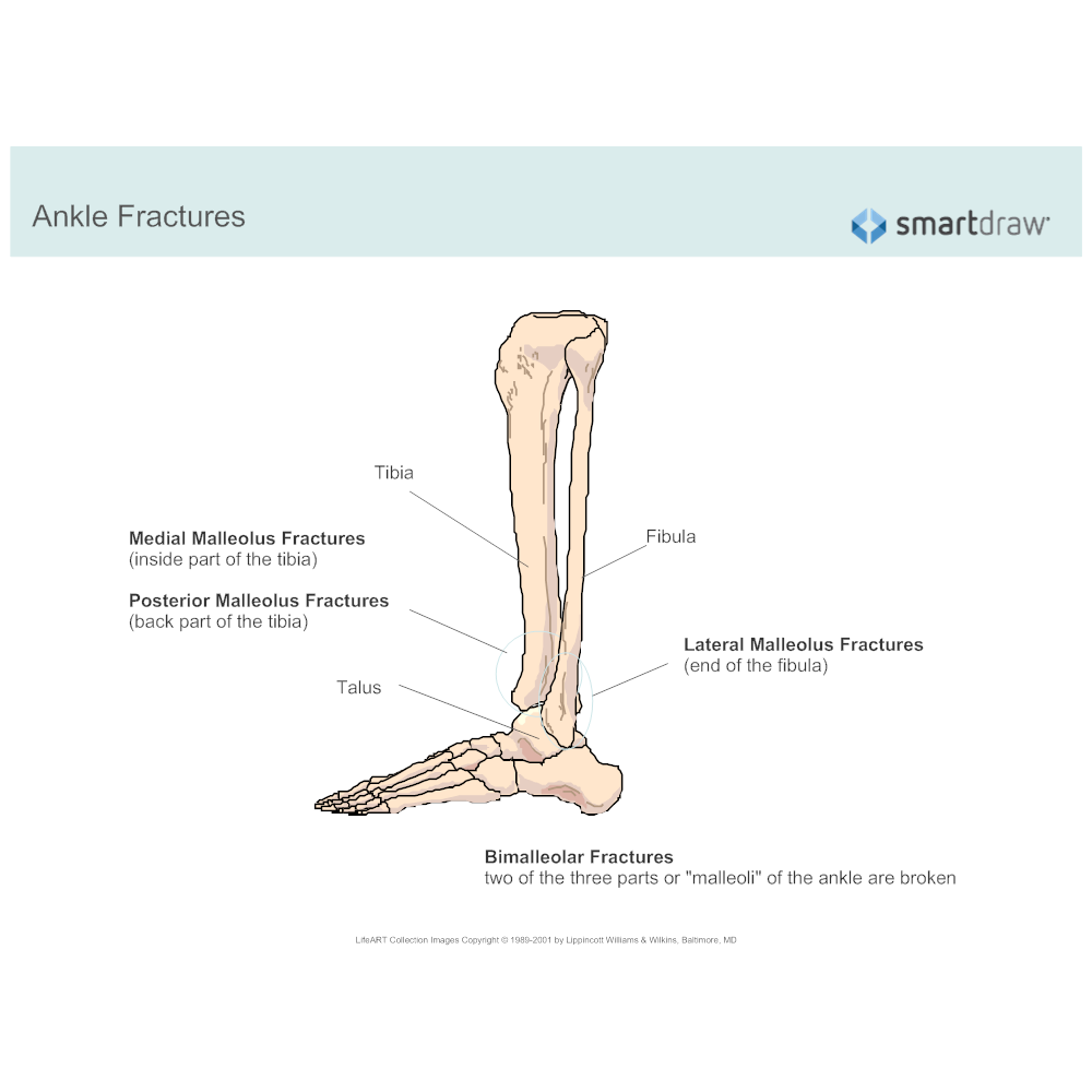 Example Image: Ankle Fractures