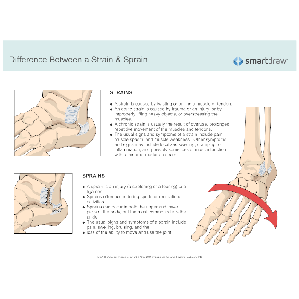 Example Image: Difference Between a Strain and Sprain