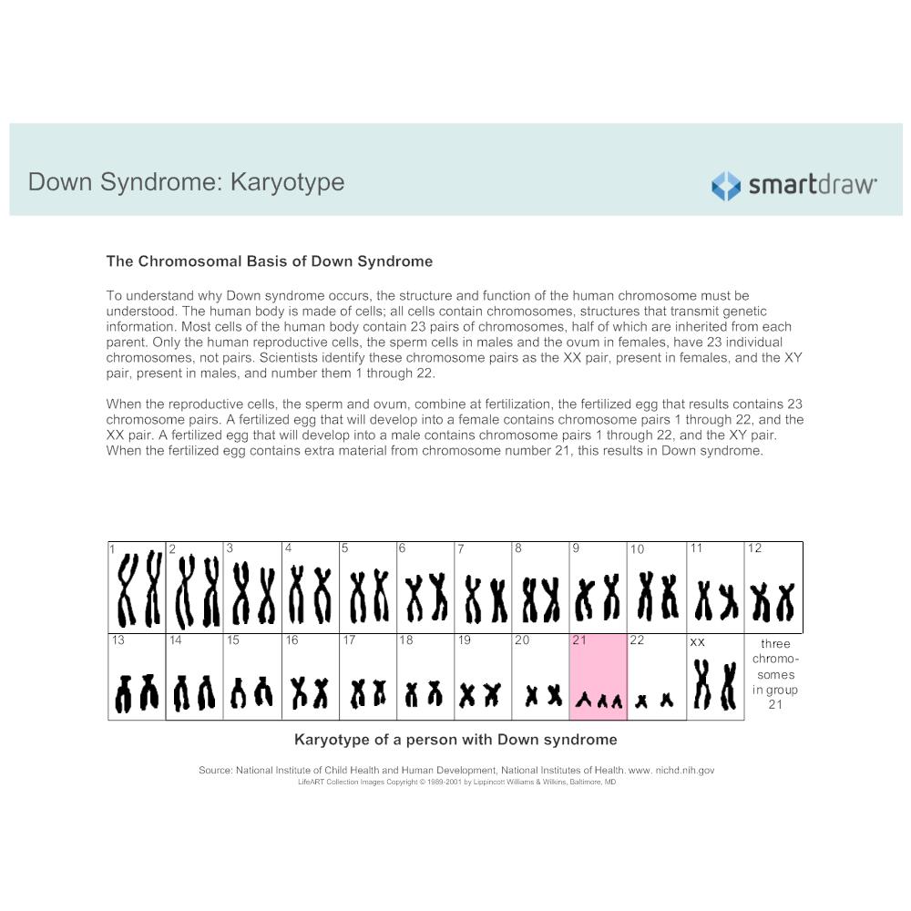 Example Image: Down Syndrome - Karyotype