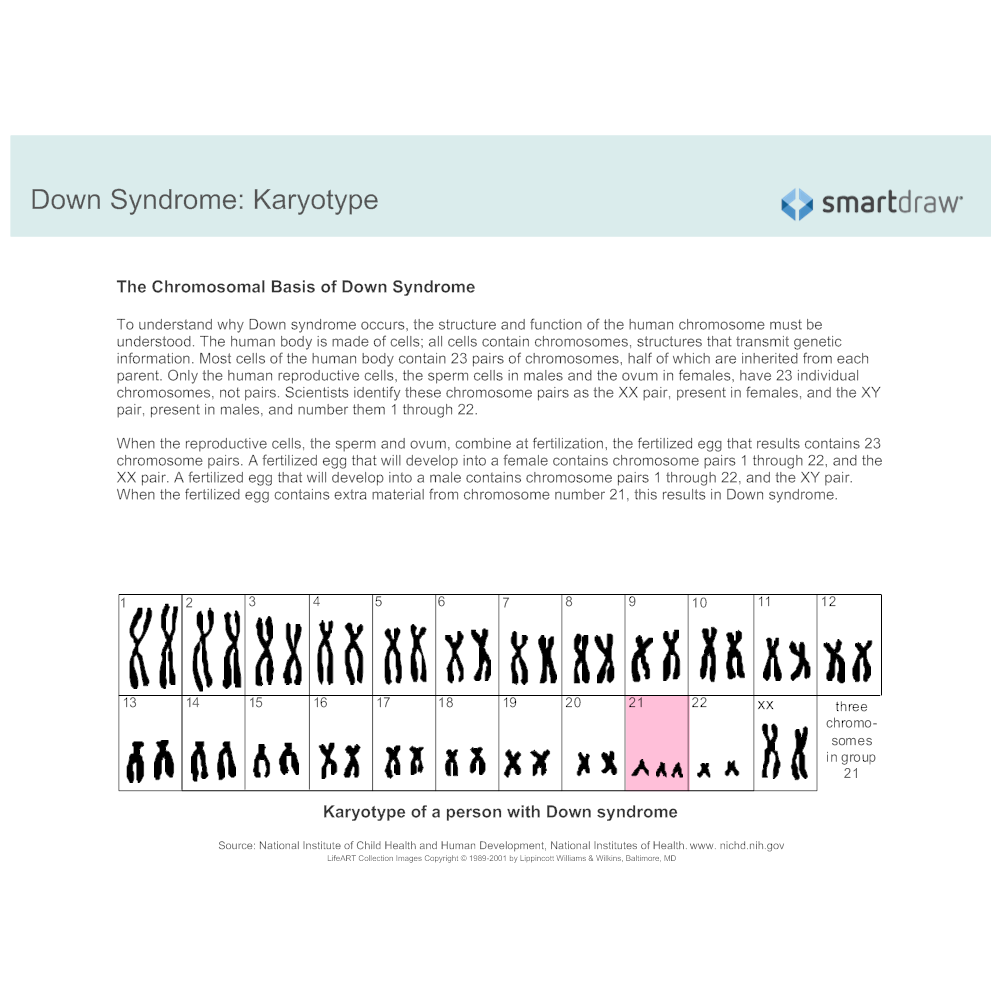 Example Image: Down Syndrome - Karyotype