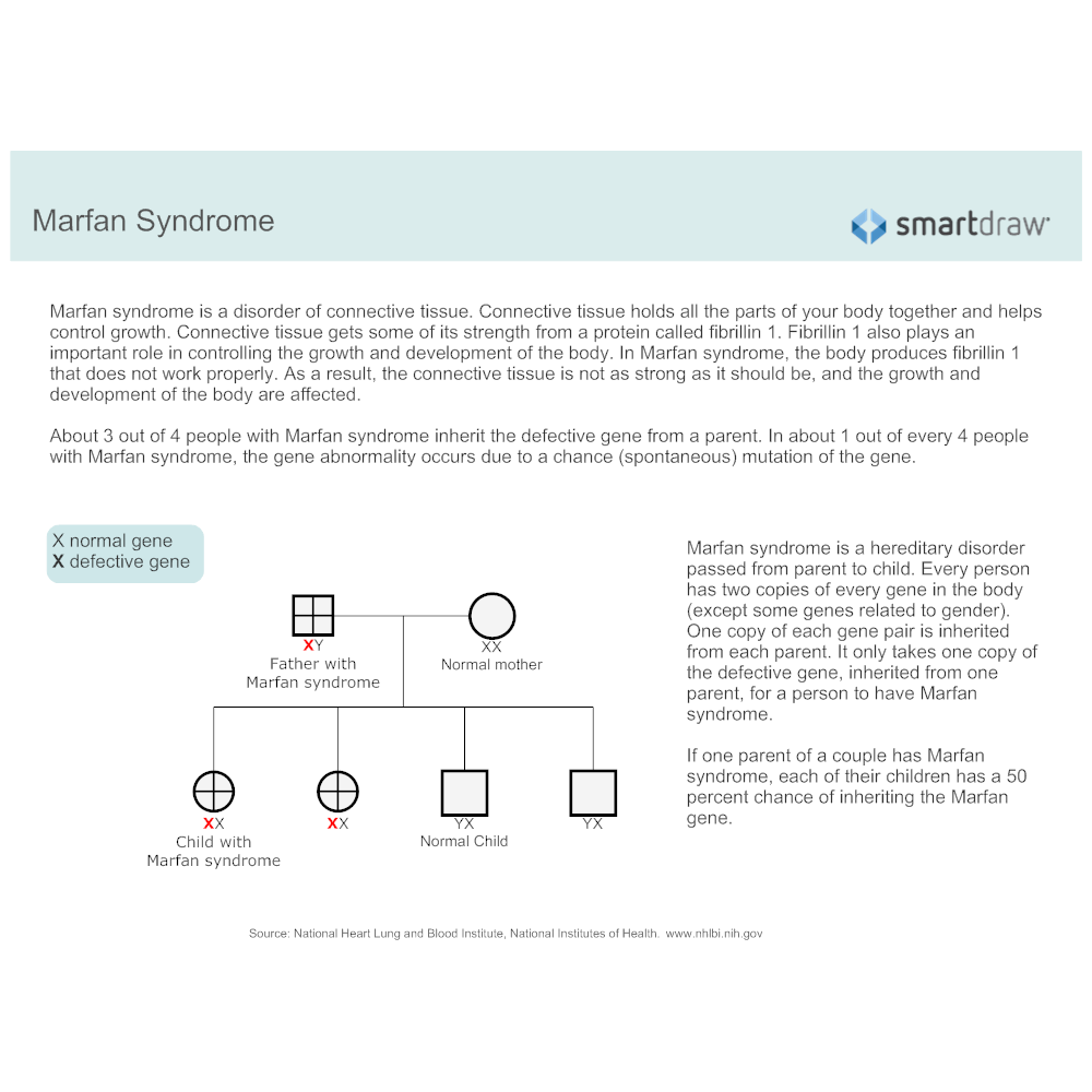 Example Image: Marfan Syndrome
