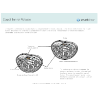Carpal Tunnel Release