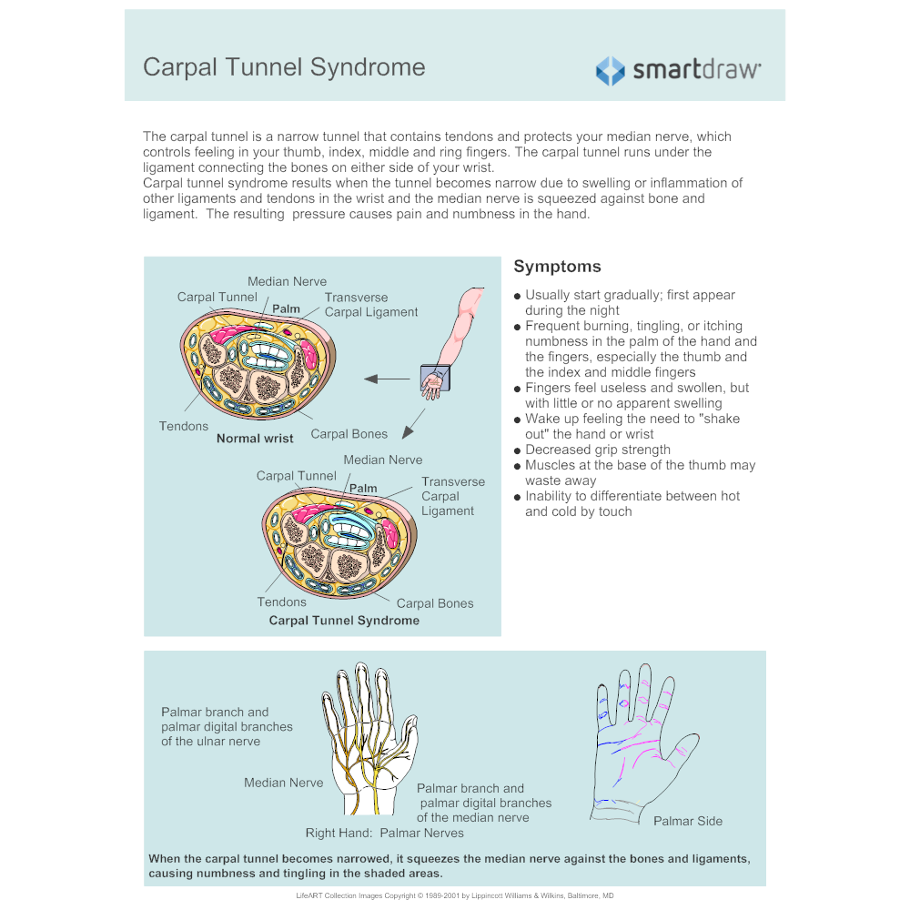 Example Image: Carpal Tunnel Syndrome