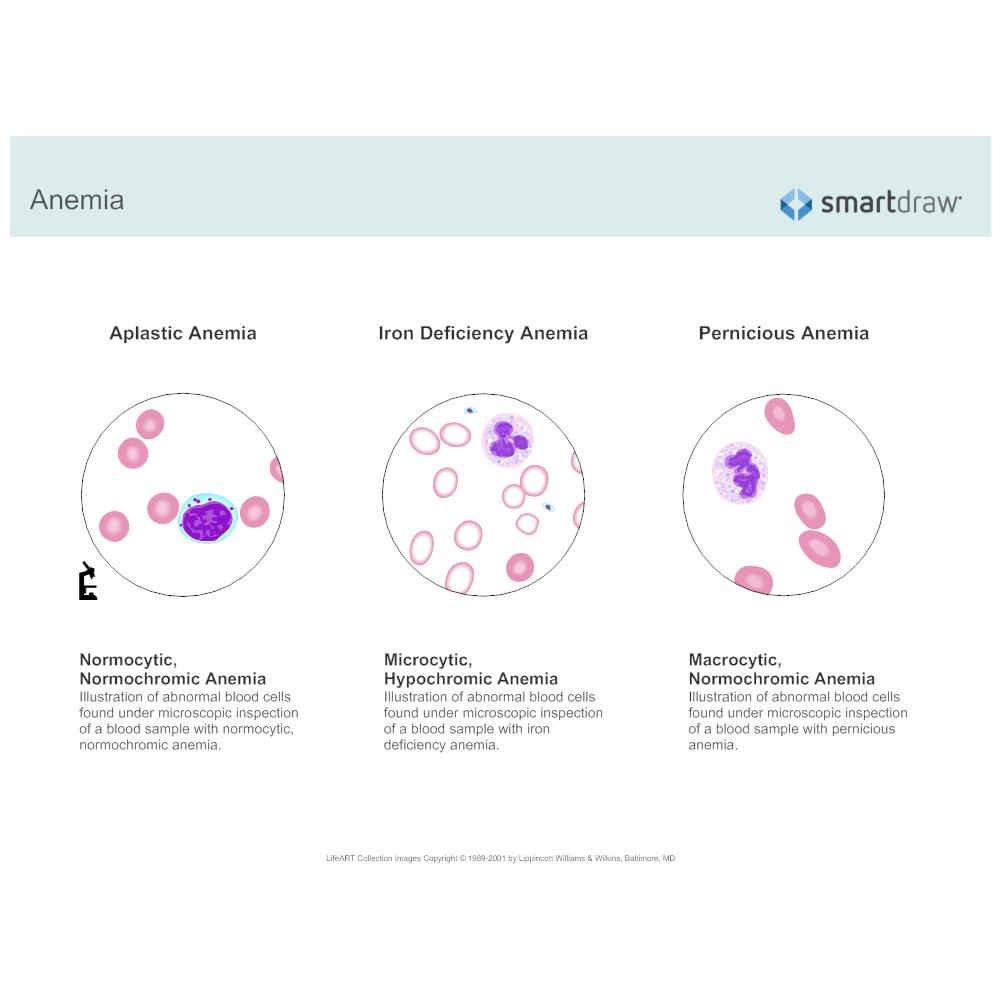Example Image: Anemia