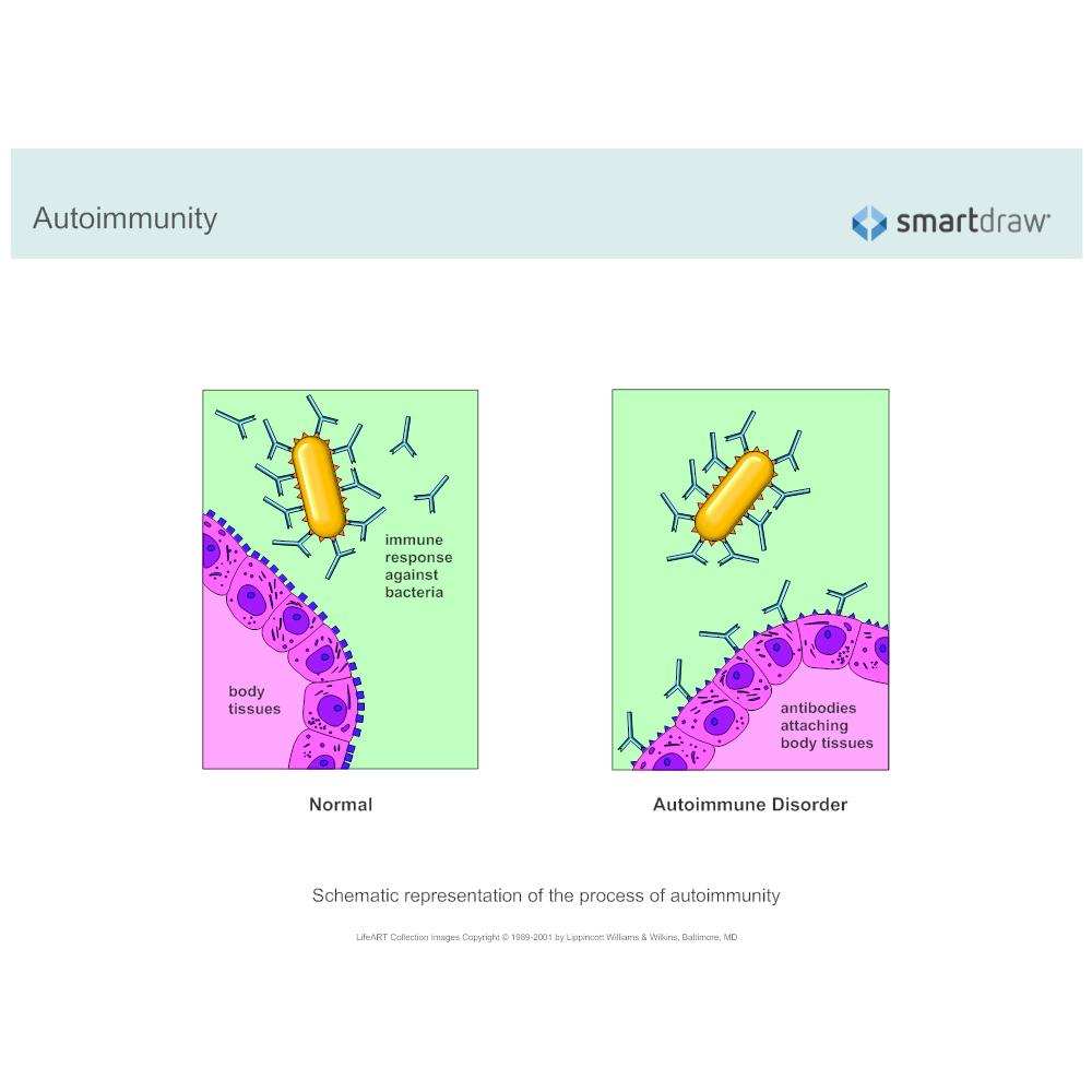 Example Image: Autoimmunity