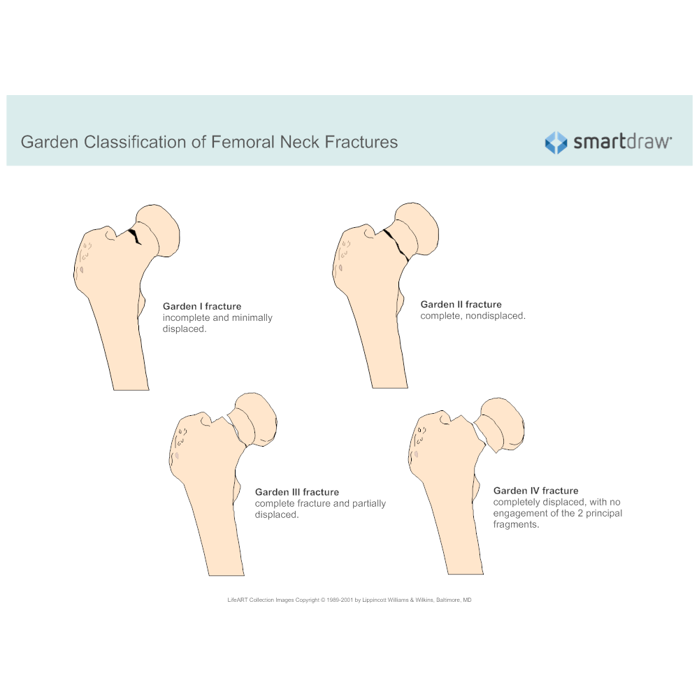 CLICK TO EDIT THIS EXAMPLE · Example Image: Garden Classification Of  Femoral Neck Fractures