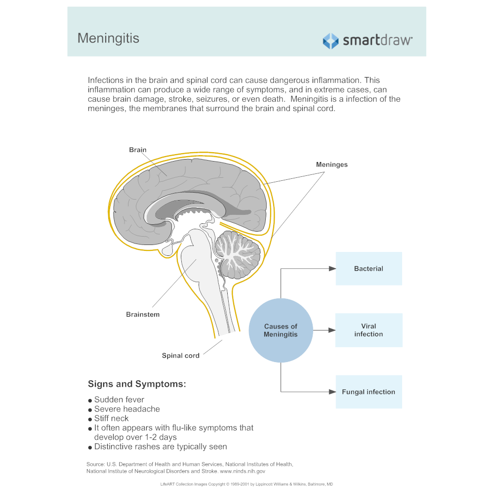 Example Image: Meningitis