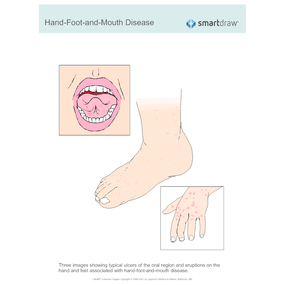 Example Image: Hand-Foot-and-Mouth Disease