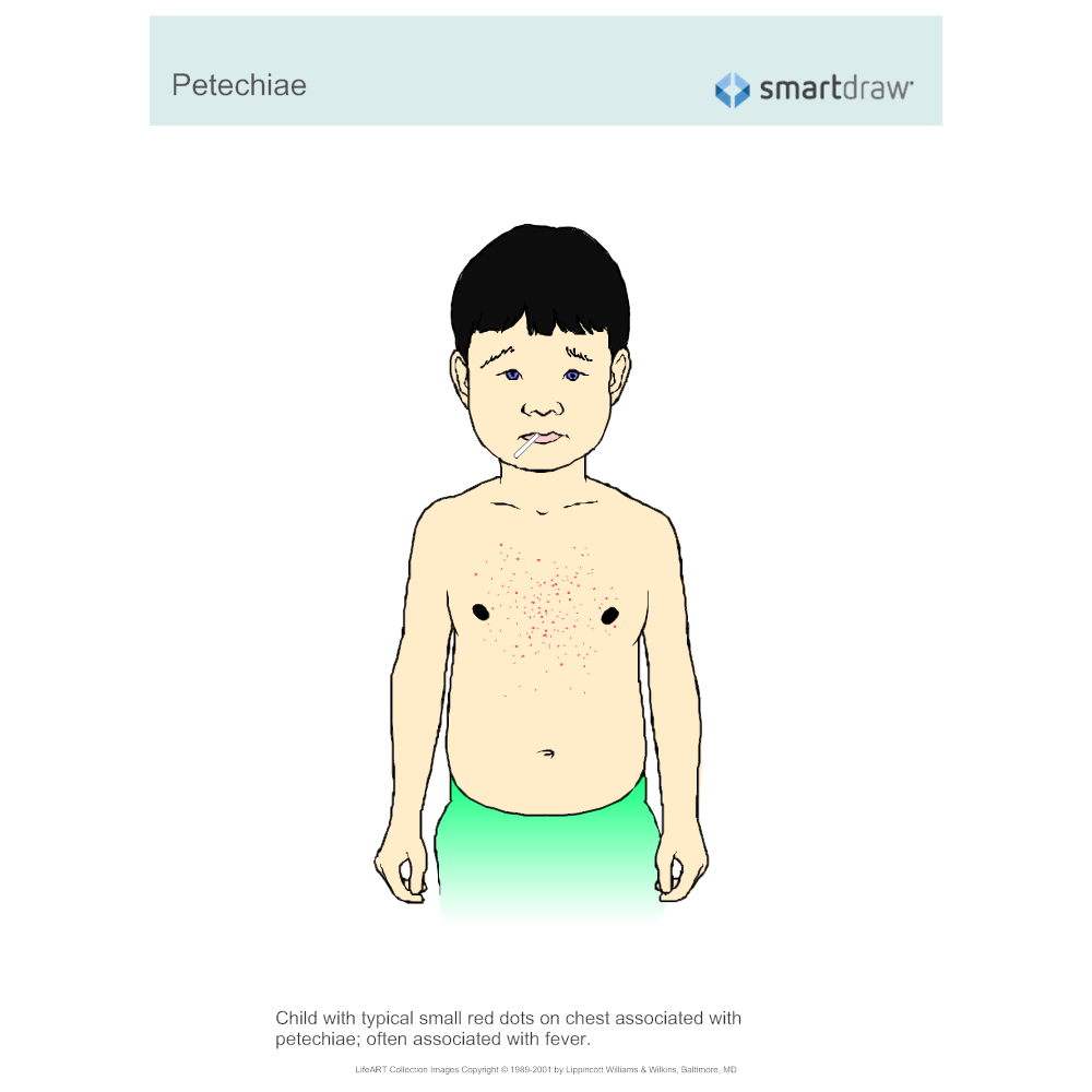 Example Image: Petechiae
