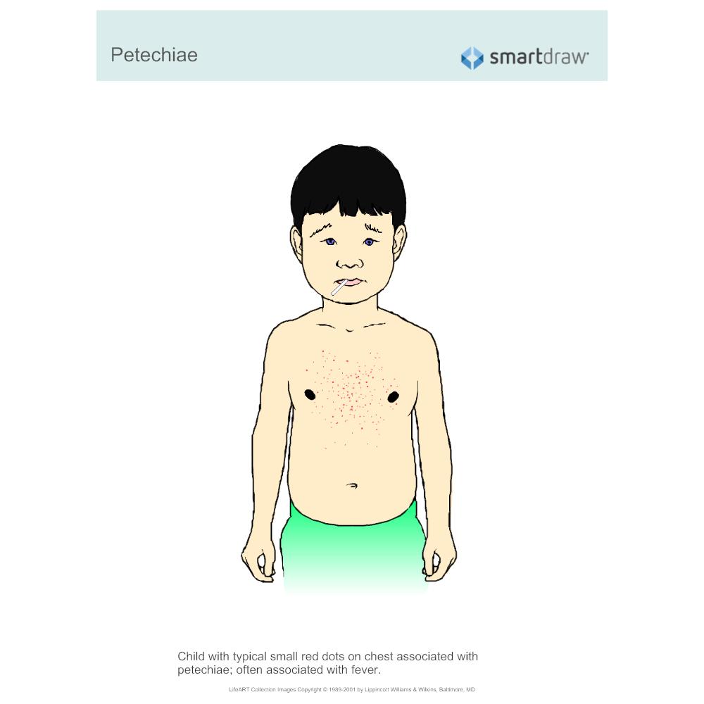 Example Image: Petechiae