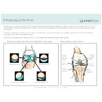 Arthroscopy of the Knee