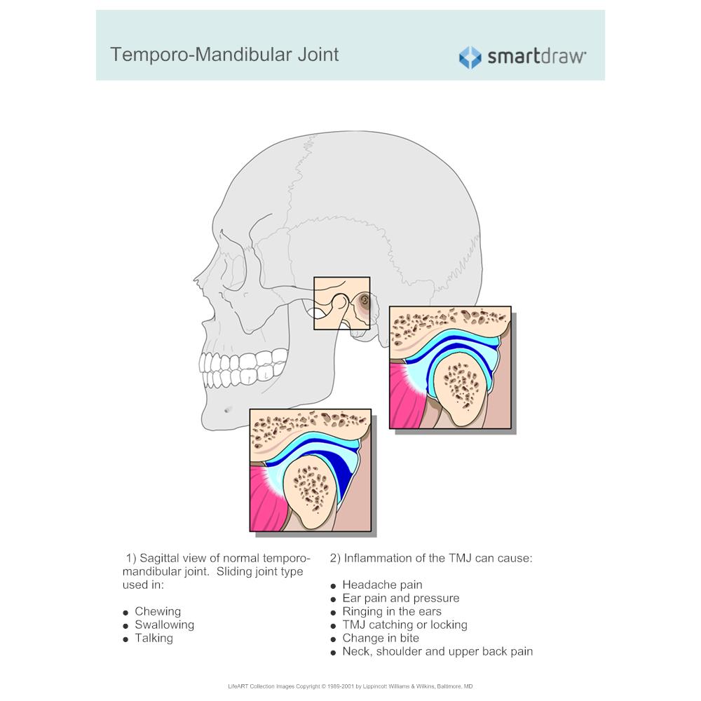 Example Image: Temporo-Mandibular Joint