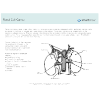 Renal Cell Cancer