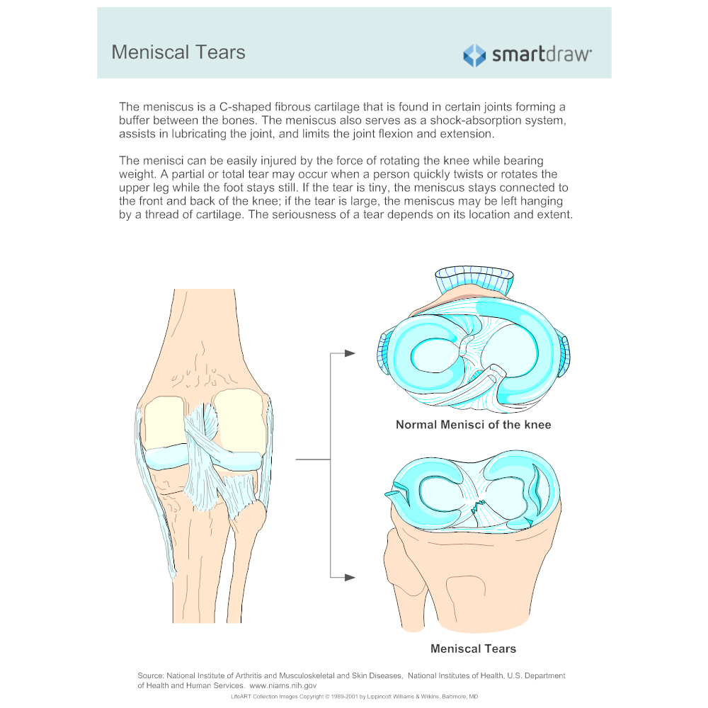 Example Image: Meniscal Tears - 1
