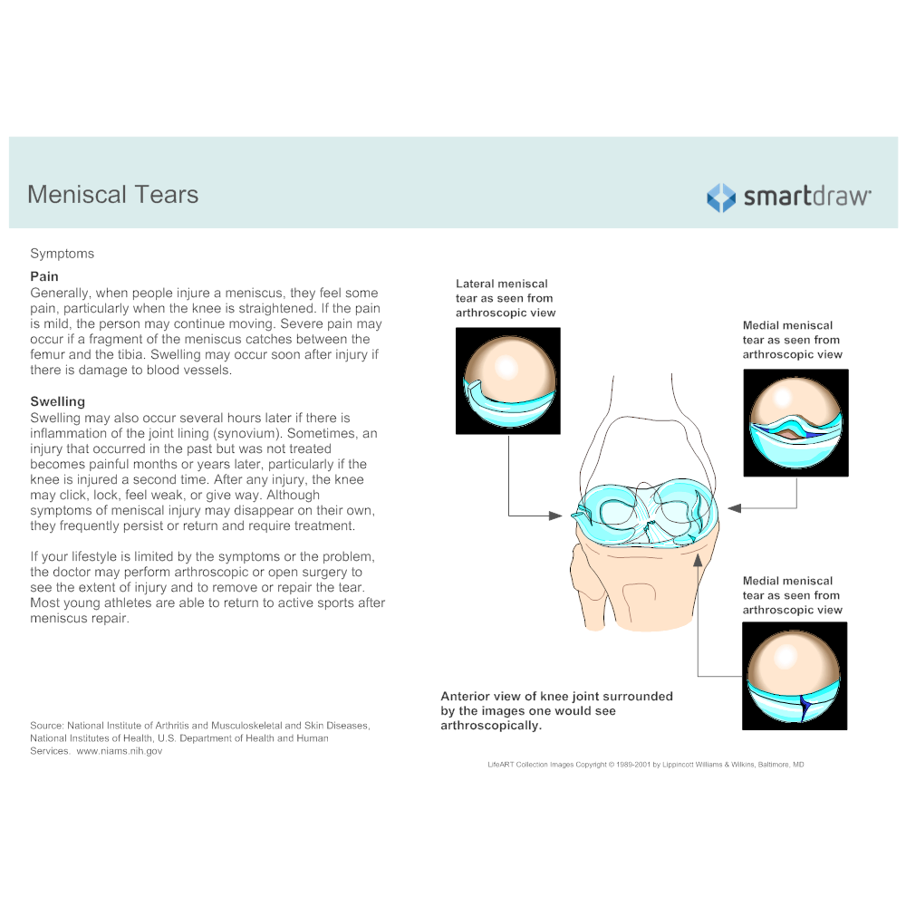 Example Image: Meniscal Tears - 2