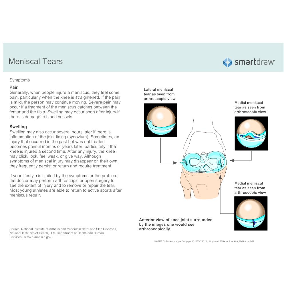 Example Image: Meniscal Tears - 2