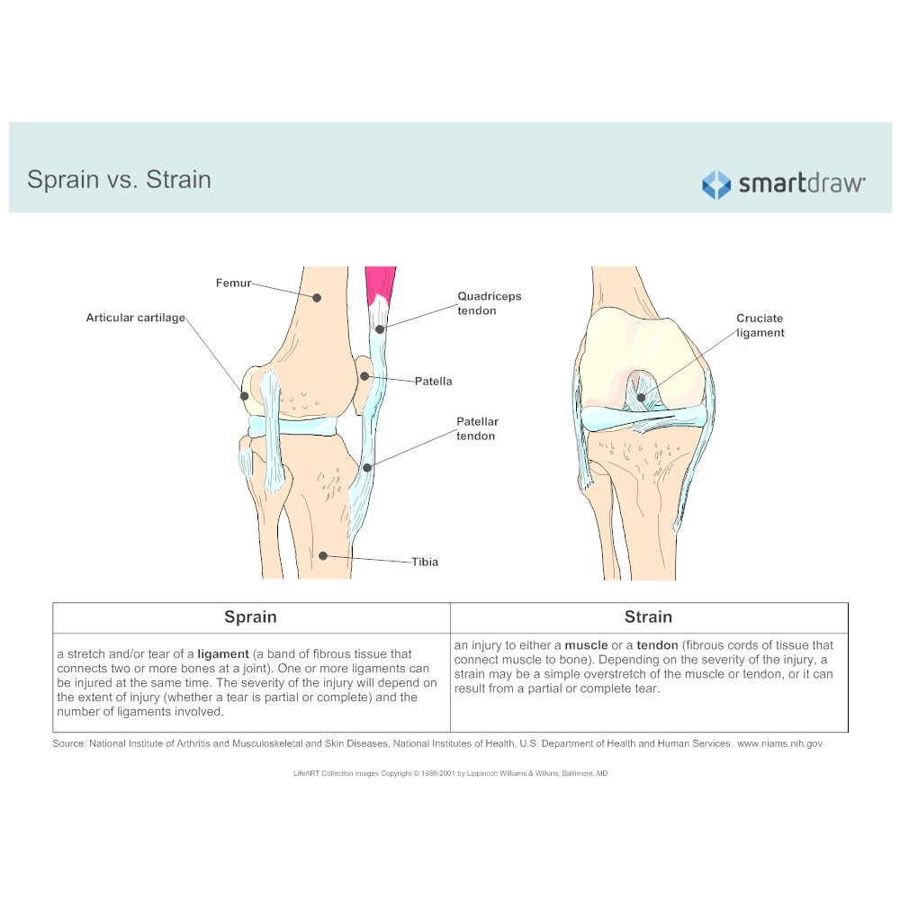 Example Image: Sprain vs. Strain