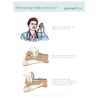Administering Intradermal Injection