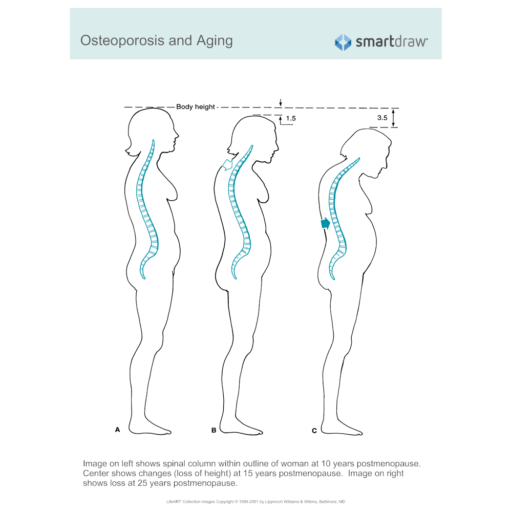 Example Image: Osteoporosis and Aging